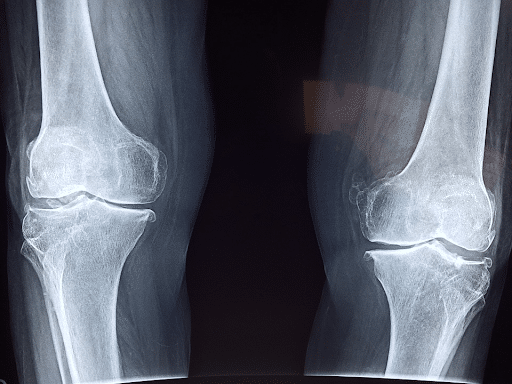 Orthopedic physical therapy provides the elderly with significant benefits